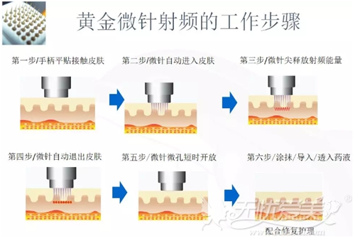 黄金微针除腋臭治疗过程