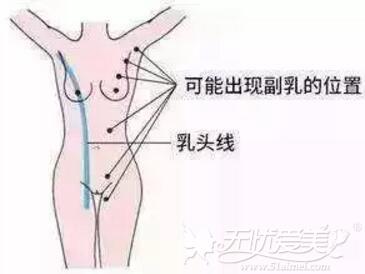 乳腺型副乳