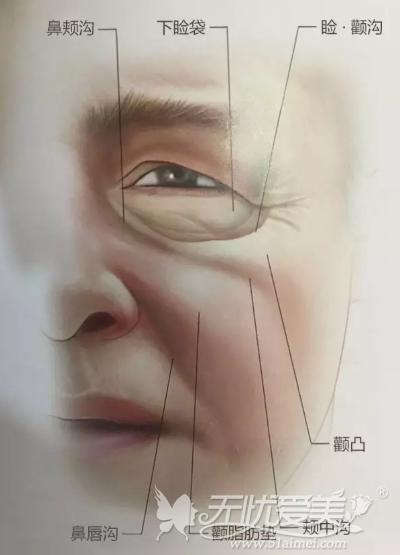 中面部提升术可以同时改善下垂的苹果肌和法令纹