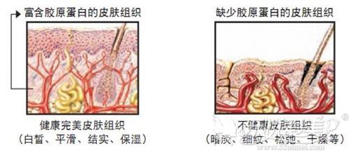 有无胶原蛋白的皮肤对比