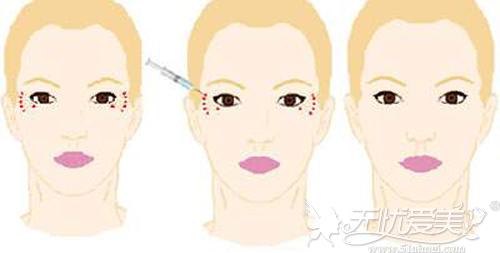 面部注射瘦脸针需要仔细标记