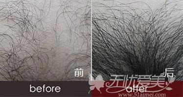 阴毛种植前后对比案例
