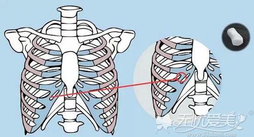 取自体肋软骨的位置