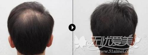 韩国头皮纹身案例展示