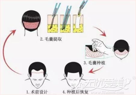 脂溢性脱发严重要做植发