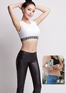 韩国原辰全身吸脂能帮你拥有好身材