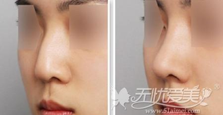 鼻综合手术案例