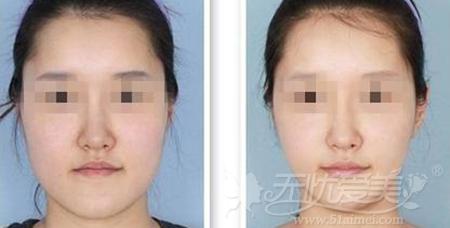 注射瘦脸针案例