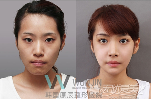 韩国原辰整形医院双颚手术案例