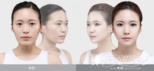 韩国丽珍整形医院v-line手术案例