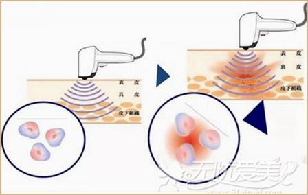 光子祛斑嫩肤的原理