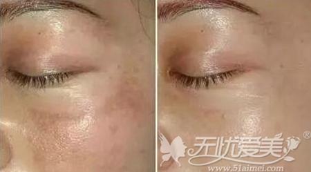 光子嫩肤只能去除浅层色斑