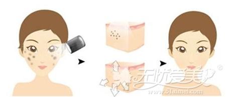 自体脂肪填充后可以进行激光美肤