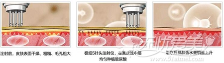 自体脂肪填充后可以进行水关针