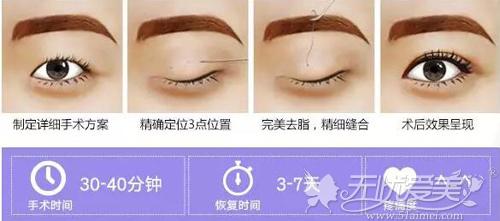 三点法双眼皮原理