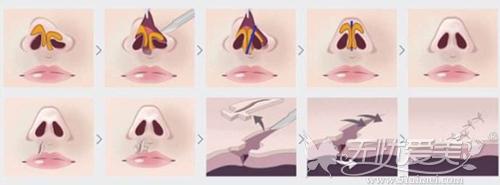 唇裂修补手术原理