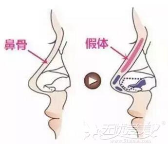 隆鼻假体放置位置