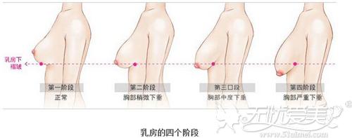 乳房下垂的不同程度