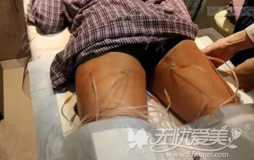 韩式溶脂针注射过程