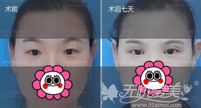 在郑州东方做眼综合手术后7天
