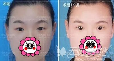 在郑州东方做眼综合手术后30天