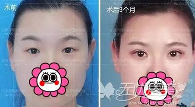 在郑州东方做眼综合手术后3个月