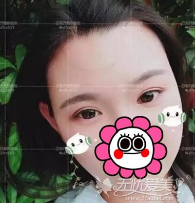 在郑州东方做眼综合手术后效果