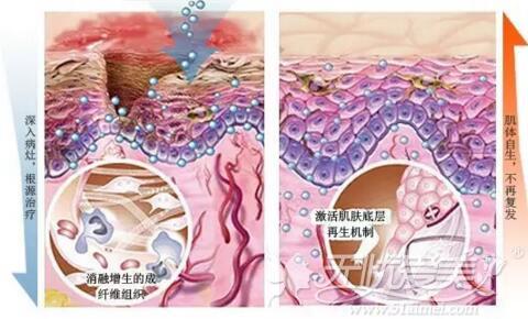 疤痕多技术联合诊疗