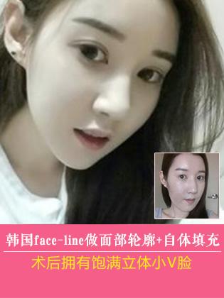 在韩国face-line做面部轮廓+自体填充后 拥有饱满立体小V脸