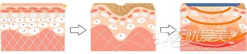电波拉皮除皱过程