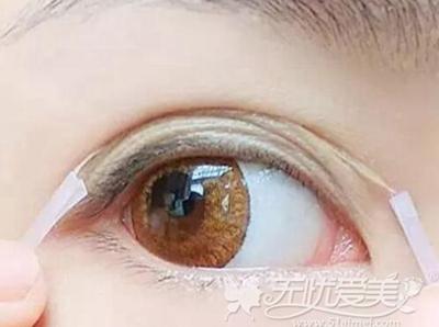 贴双眼皮贴和双眼皮胶水