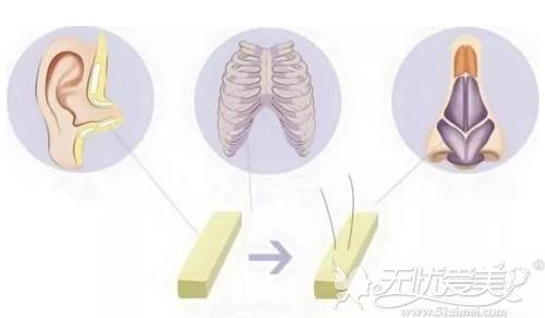 半肋骨鼻修复原理