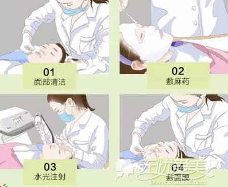 注射水光针的过程