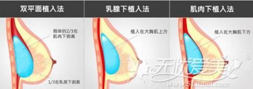 常见的假体隆胸手术方法