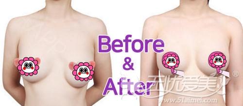 常见的假体隆胸修复手术案例