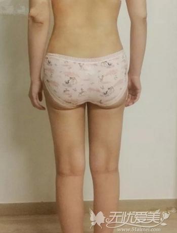 我在高兰得做腰腹+大腿吸脂术后1个月