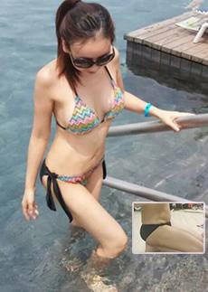 韩国高兰得腰腹+大腿吸脂手术案例