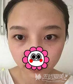 在南京华美做双眼皮手术前