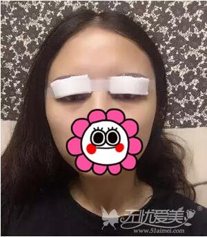 在南京华美做双眼皮手当天