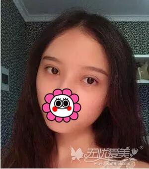 在南京华美做双眼皮手术后10天