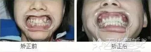 虎牙矫正前后对比