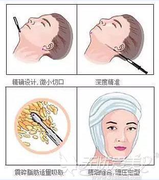 面部吸脂的手术原理