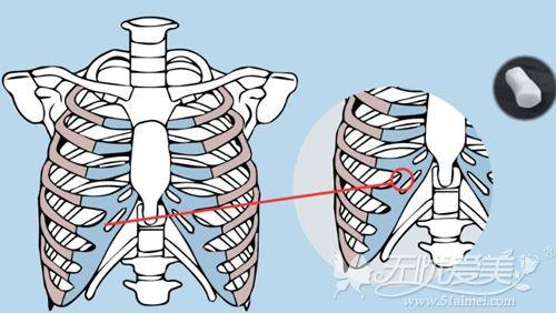 自体肋骨选取的部位