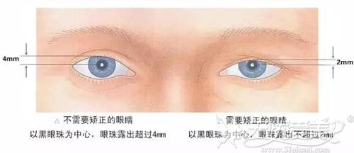 需要矫正的眼睛