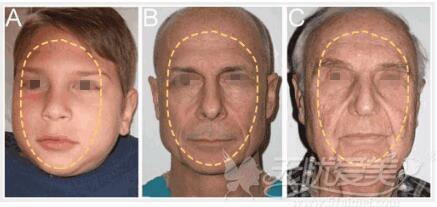 年轻人和老年人的面部轮廓线变化