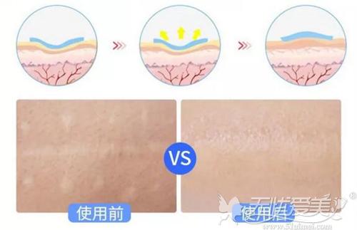 芭克具有修复疤痕皮肤的效果