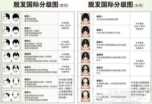 国际脱发等级图
