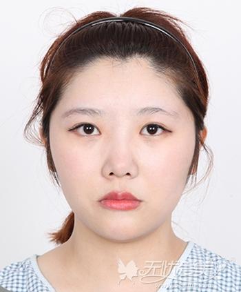 在韩国菲斯莱茵做颧骨整形+眼鼻整形手术前