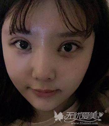 在韩国菲斯莱茵做颧骨整形+眼鼻整形手术后1周