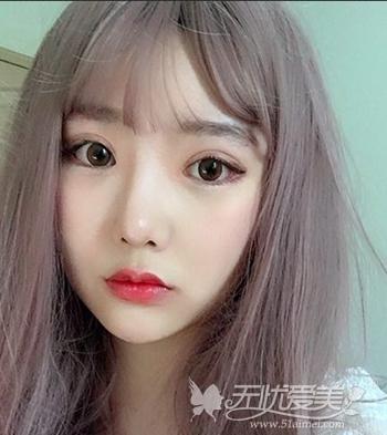 在韩国菲斯莱茵做颧骨整形+眼鼻整形手术后2个月